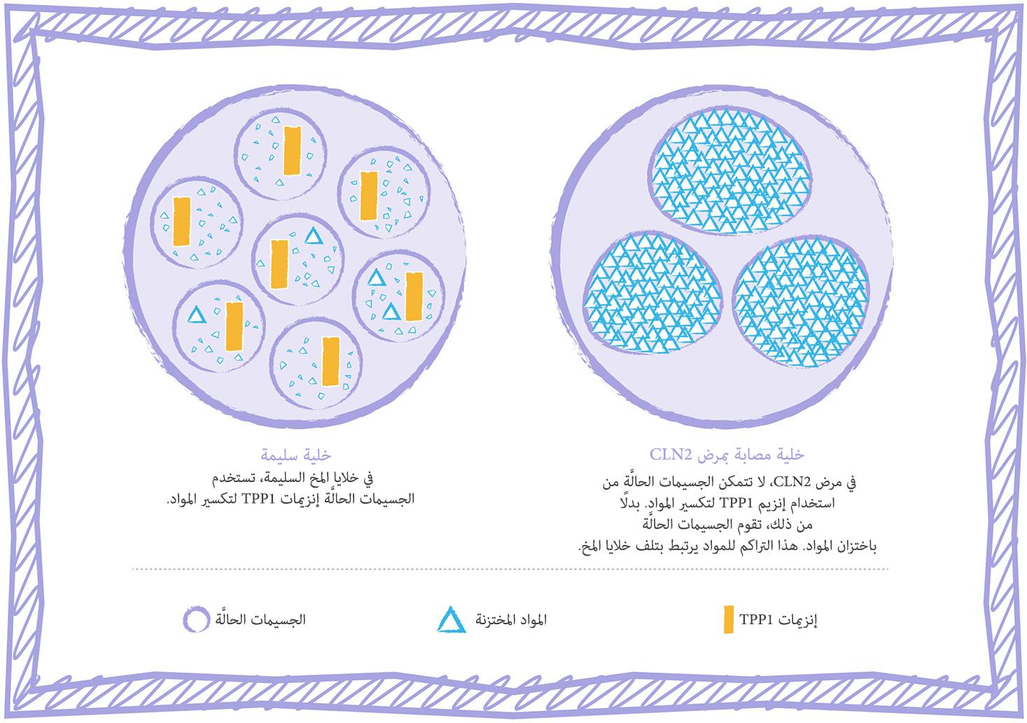 الرسم التوضيحي للخلية في حالة اضطراب الاختزان في الجسيمات الحالَّة في مرض CLN2